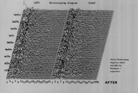 Harry Selkirk - EEG after Alphalearning